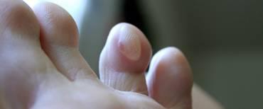 Hardlooptips: Zo voorkom je blaren bij het hardlopen